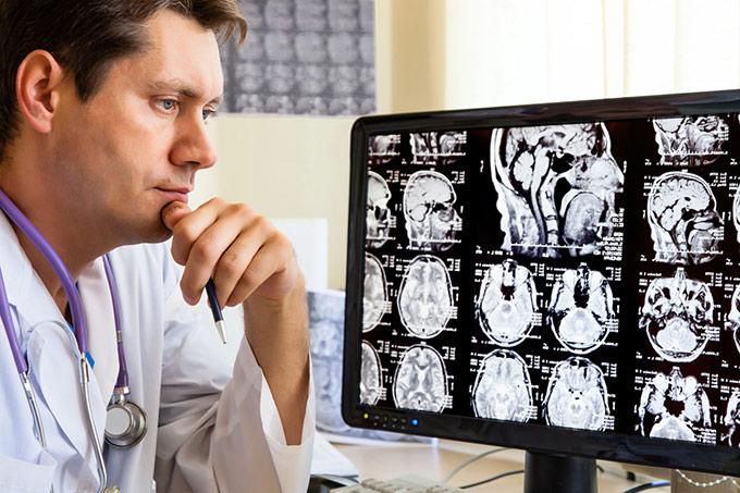 Arteriovenous malformation diagnostics