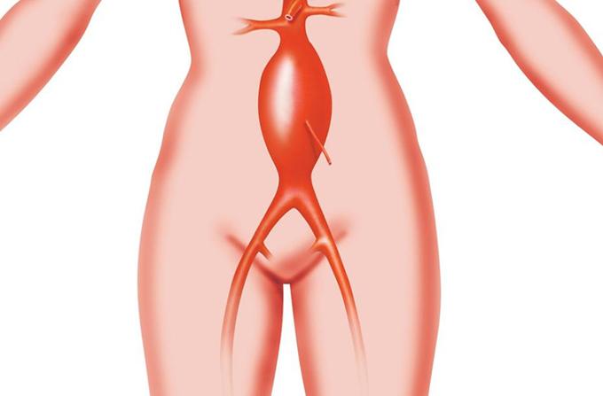 Anevrizma bryushnoy aorty