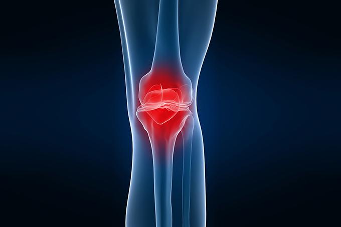 Endoprotezirovaniye kolennogo sustava za rubezhom