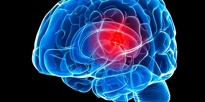 Meningioma golovnogo mozga