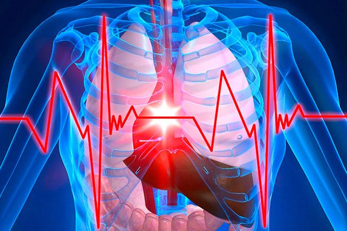 Cardiac angina