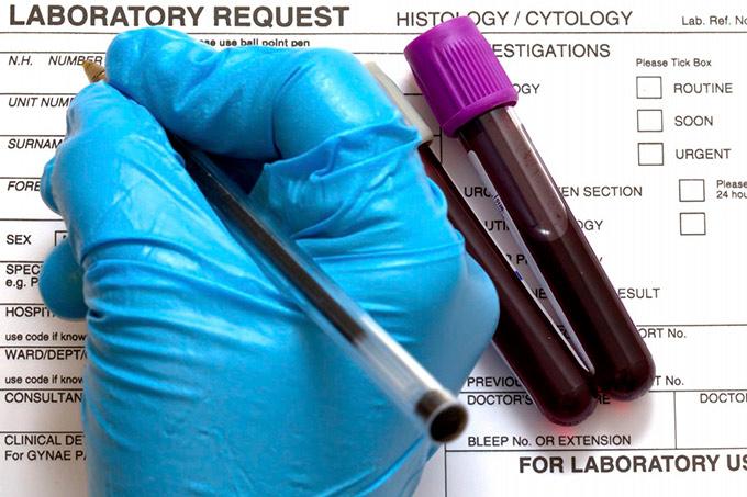 Aplasticheskaya anemiya diagnostika