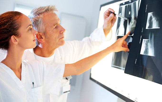 Ewings sarcoma diagnostics
