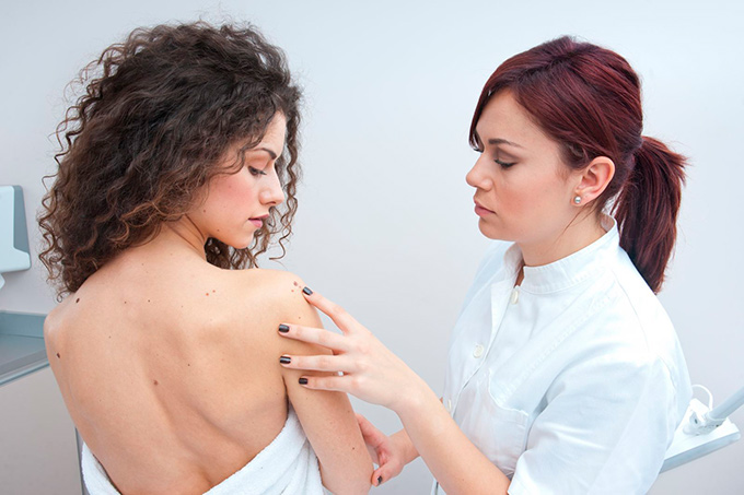 melanoma diagnostics