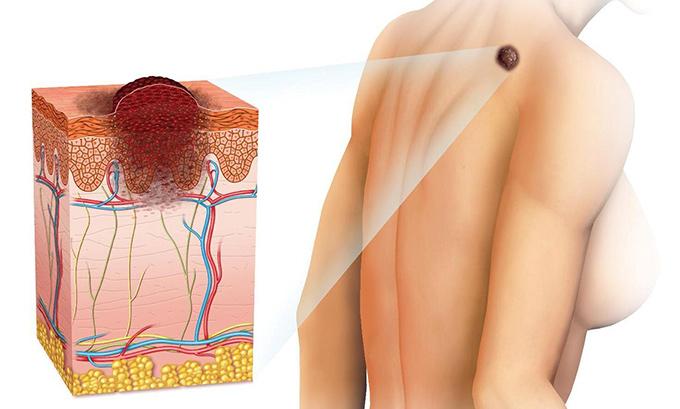 melanoma lechenie