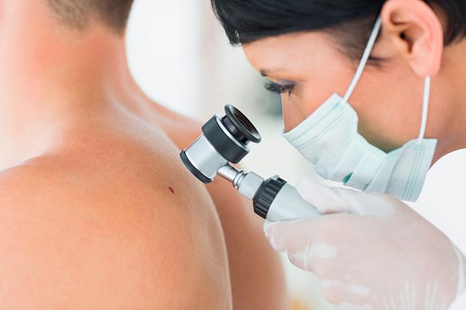 melanoma instrumentalnyye metody issledovaniya