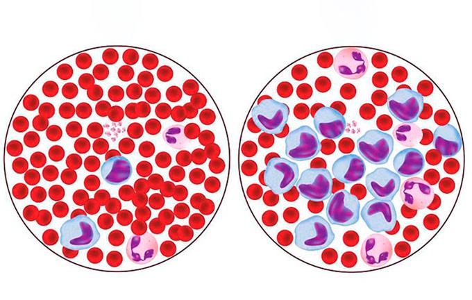 Ostryy limfoblastnyy leykoz