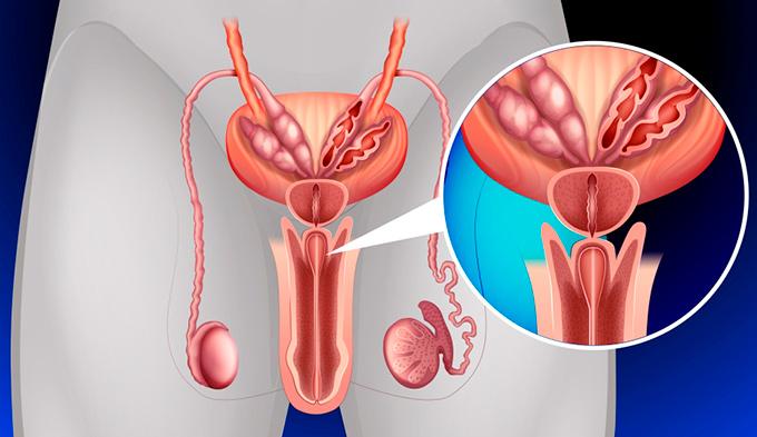 rak predstatelnoy zhelezy lechenie za rubezhom