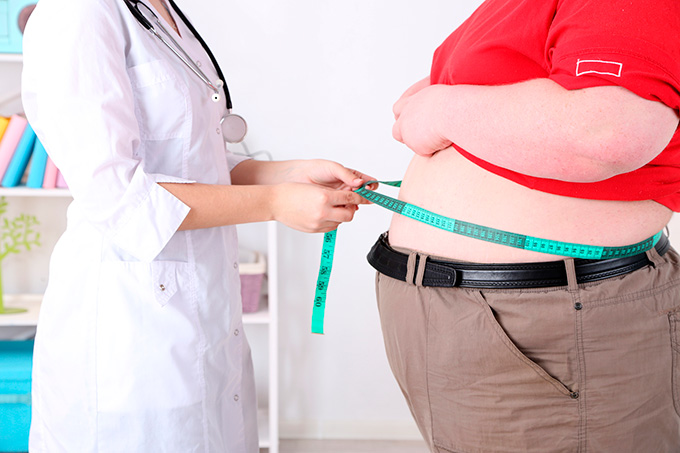 Obesity symptoms and diagnostics
