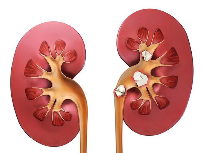 Urolithiasis Urinary Stone Disease