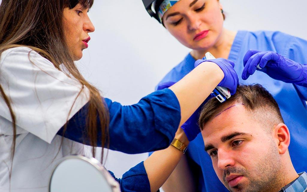 Трансплантация волос технологией HFE
