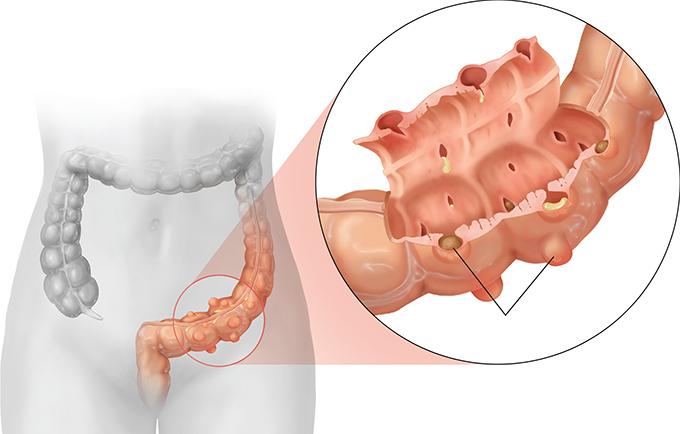 divertikulit lecheniye za rubezhom