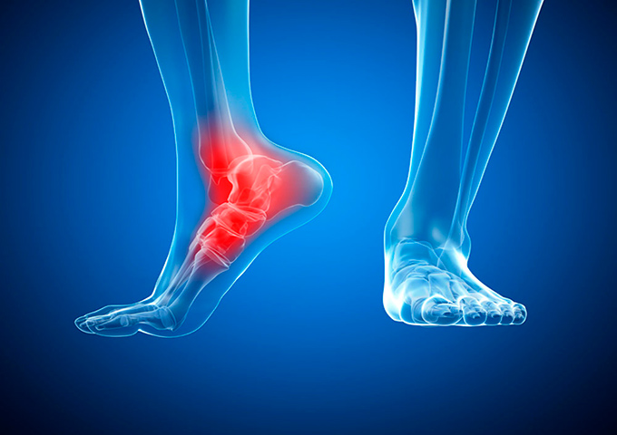 ankle joint arthritis treatment abroad
