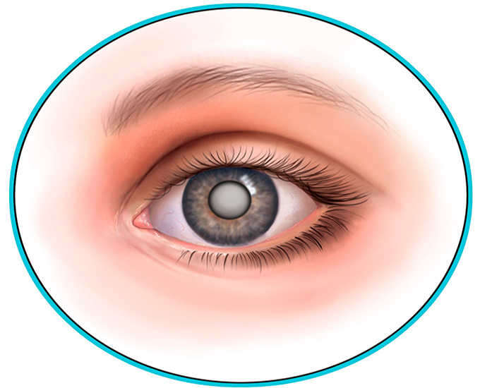 cataract treatment abroad