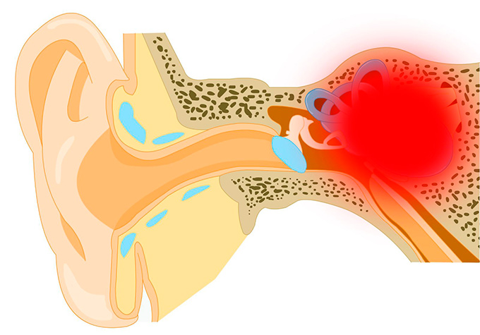 otosclerosis treatment abroad