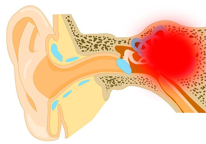 otoskleroz lecheniye za rubezhom