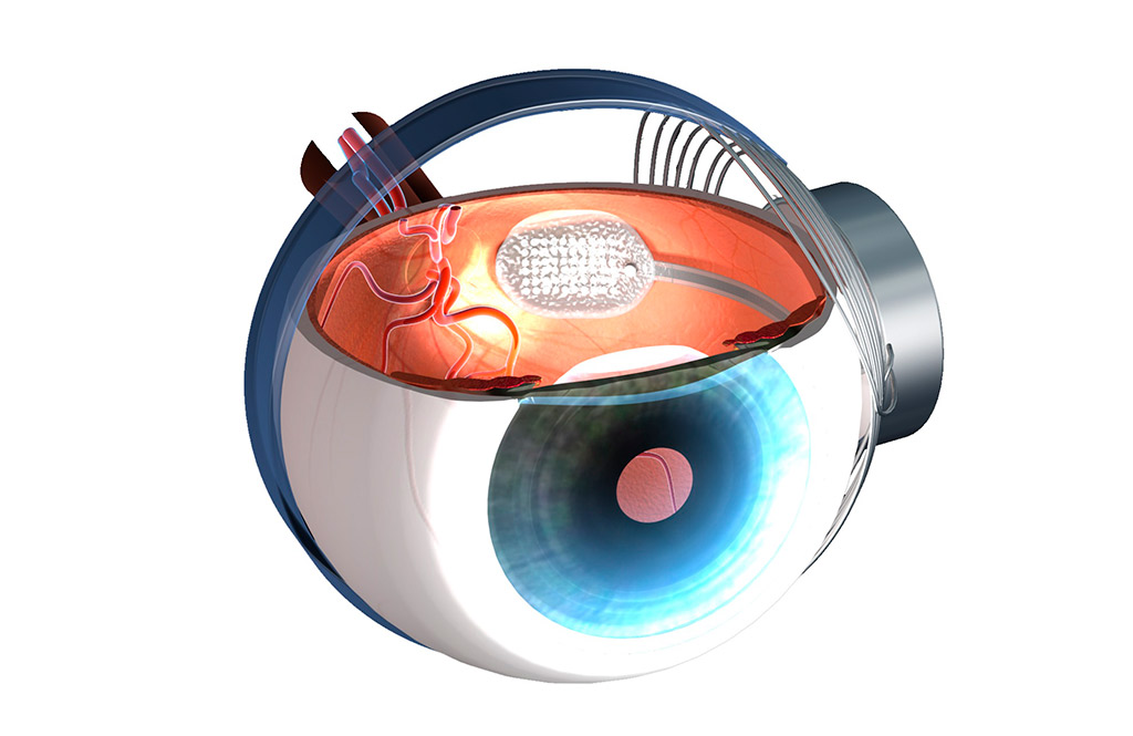 implant Argus II