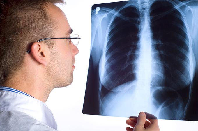 Злокачественная опухоль средостения диагностика