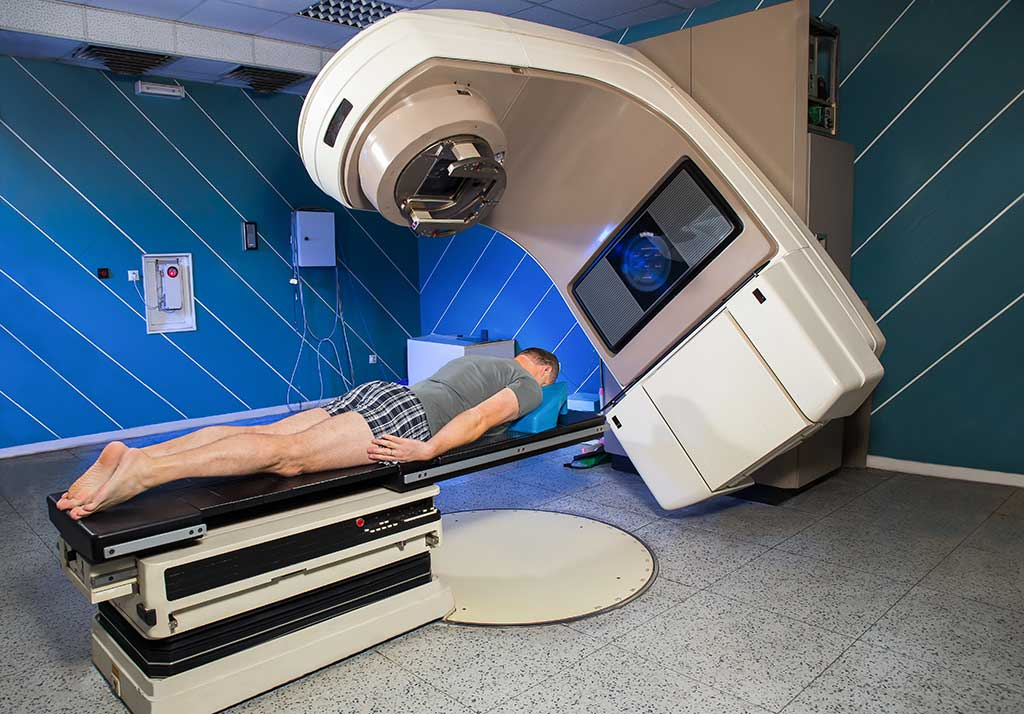 Лучевая терапия рака легких