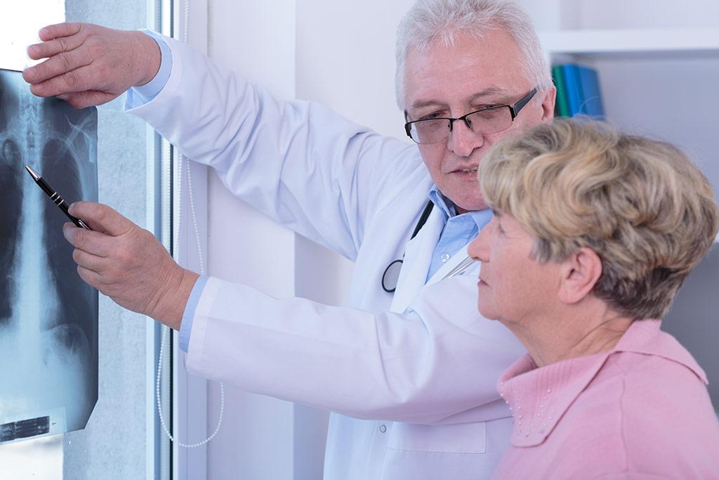 Способы лечения немелкоклеточного рака легкого