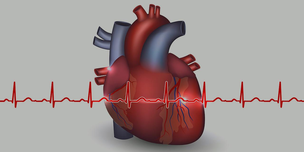 تشخيص داء القلب الإقفاري في ألمانيا